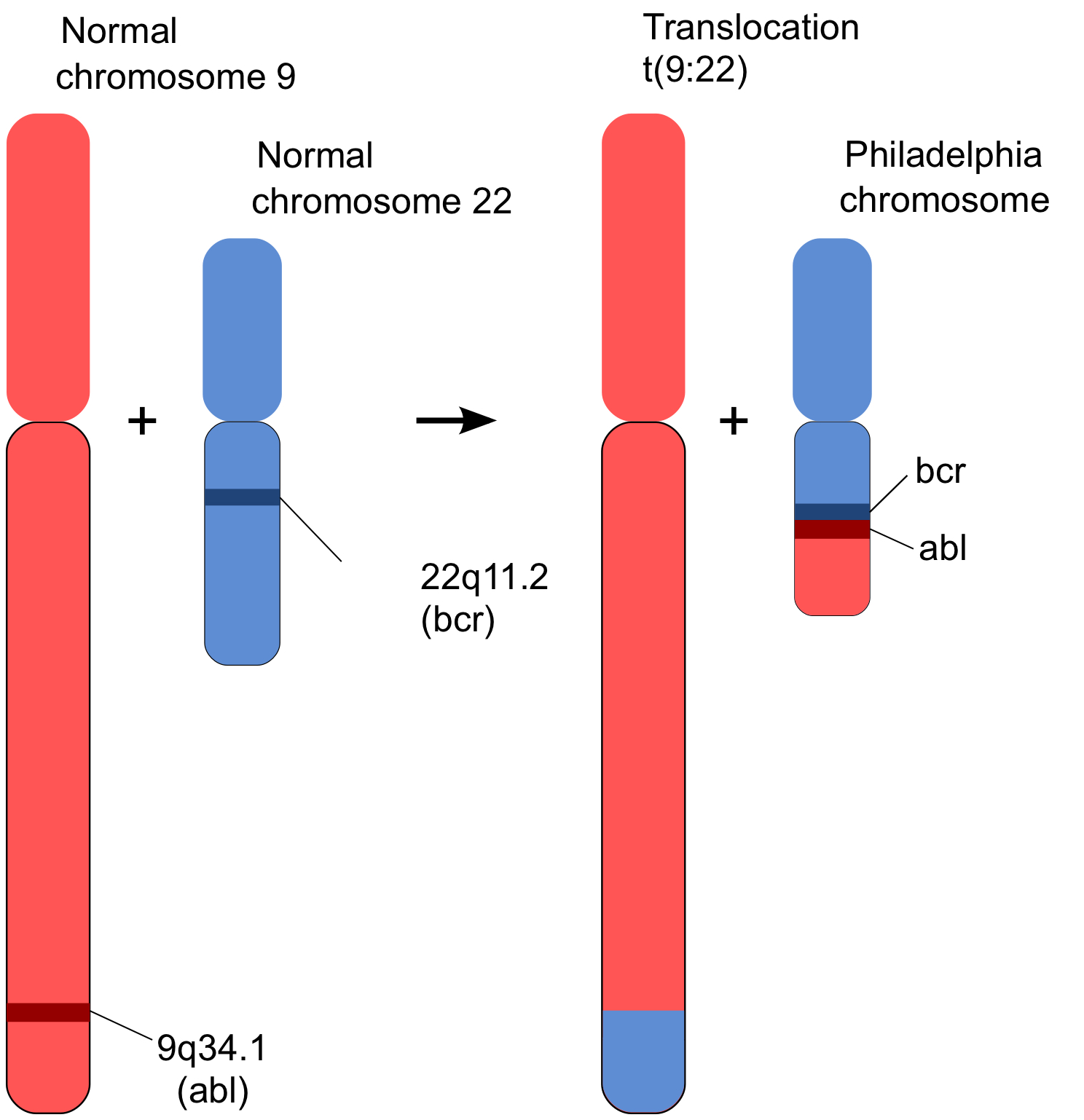 Human Chromosome 22 Translocation CML